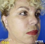 Neck Lift and Face Lift